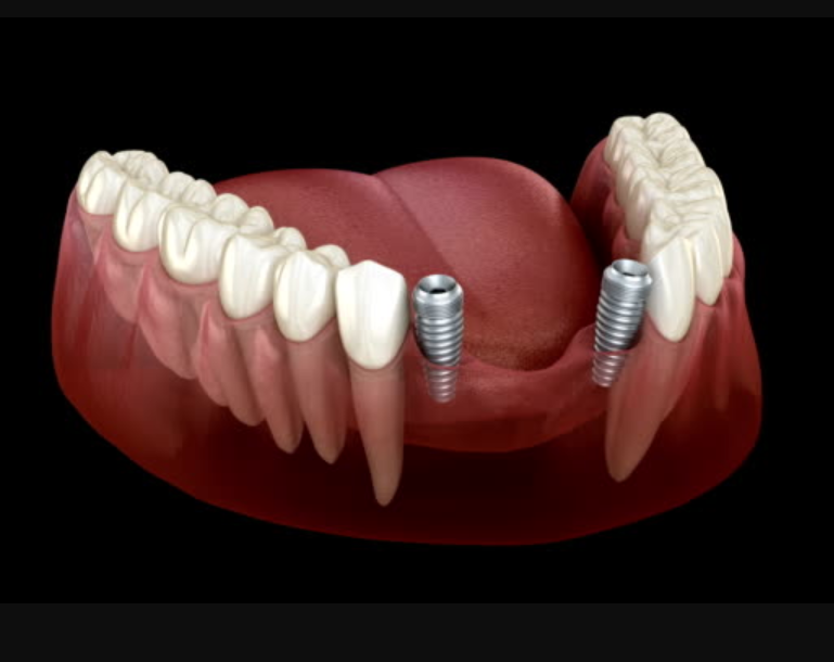 Get the success with Advance course of Dental Implant: CIRP