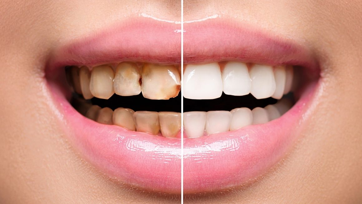 Restore Your Smile and Confidence with Complete Dental Restoration.
