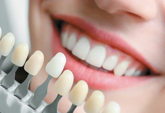 Procedures in Cosmetic and Family Dentistry: An Overview