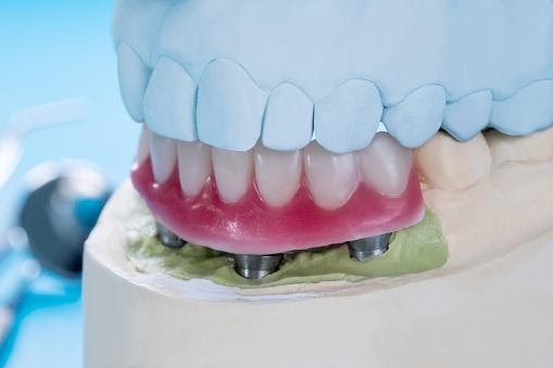 IMPLANT SUPPORTED OVERDENTURES IN DENTISTRY