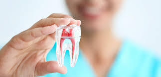 A Guide to Root Canal: What it is and Why It's Done