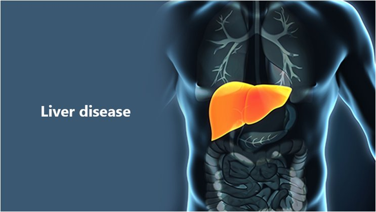 Liver diseases: Signs & Symptoms that you Must not ignore