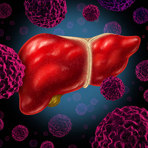 Is Liver Transplant Cheap In India?