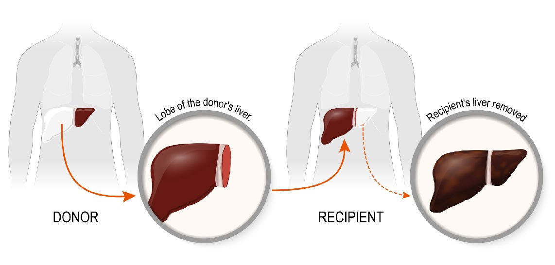 Why is Fortis Kalyan Mumbai the best Hospital for a liver transplant?
